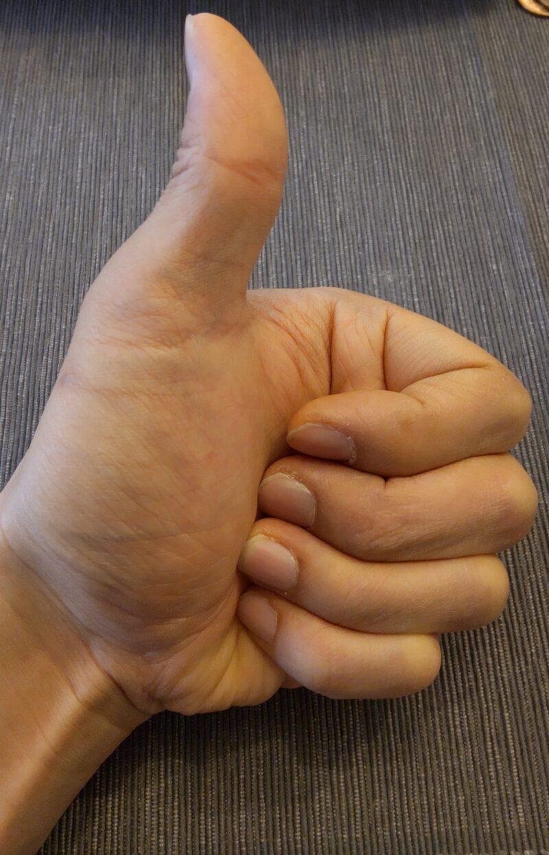 退院後の左手