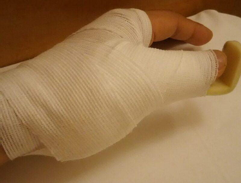 包帯を巻いた左手